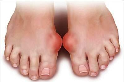 Bệnh Gout - Thống Phong