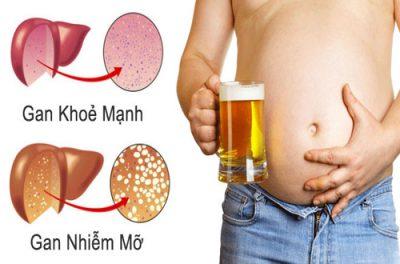 Tác hại của rượu bia ảnh hưởng xấu đến gan