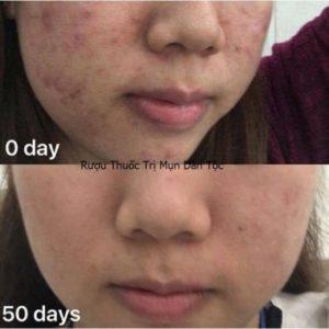 Thời gian 50 ngày với da dày và mụn ẩn nhiều.